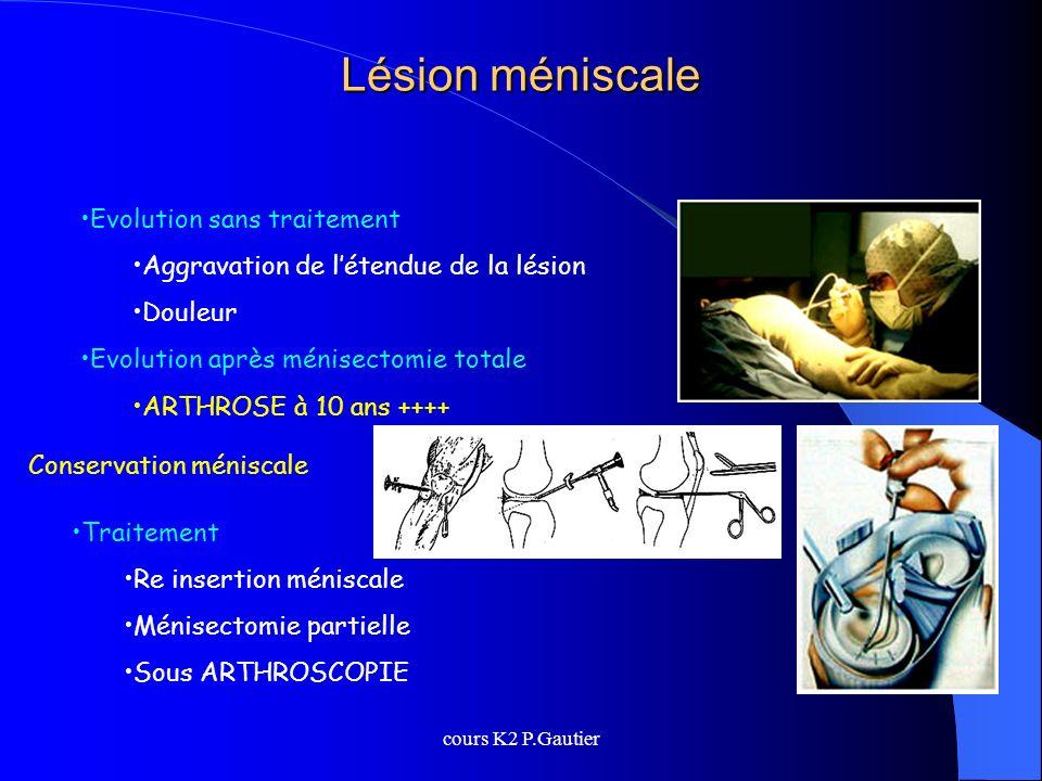 Lésion méniscale Evolution sans traitement