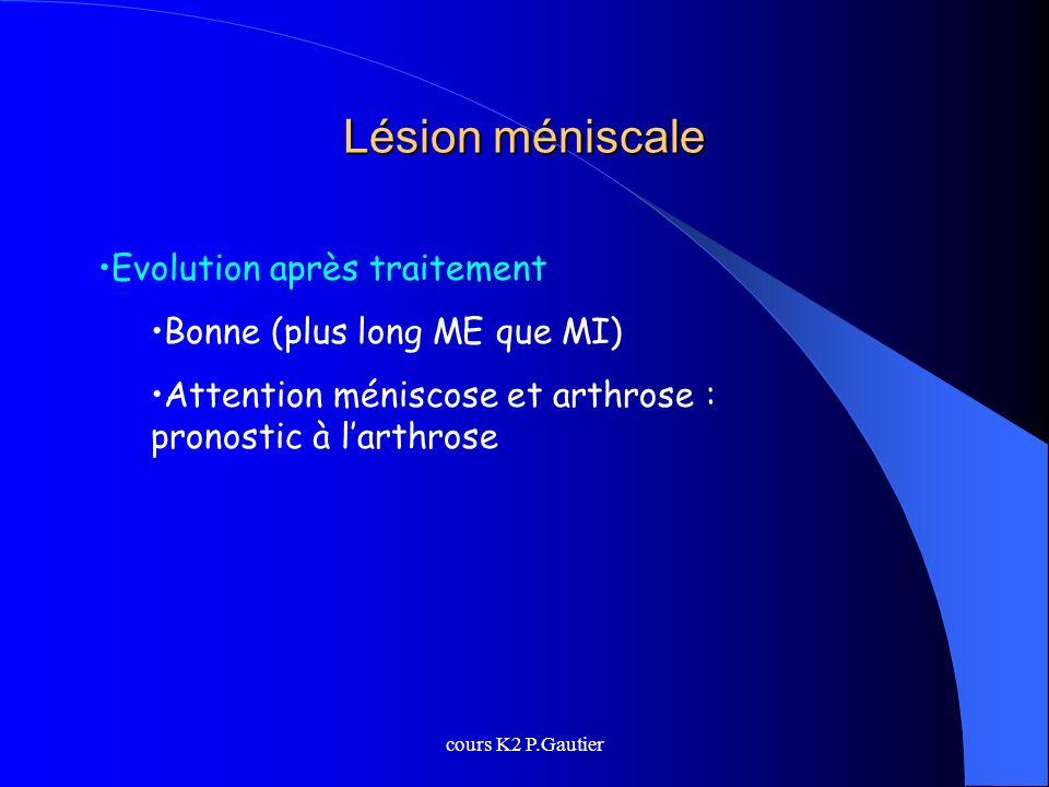 Lésion méniscale Evolution après traitement