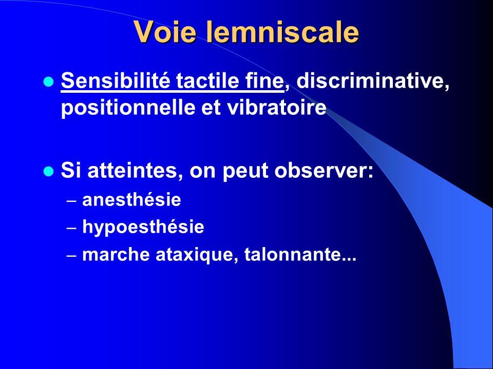 Voie lemniscale Sensibilité tactile fine, discriminative, positionnelle et vibratoire. Si atteintes, on peut observer: