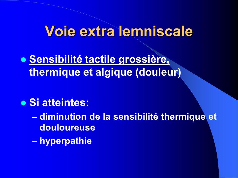 Voie extra lemniscale Sensibilité tactile grossière, thermique et algique (douleur) Si atteintes: