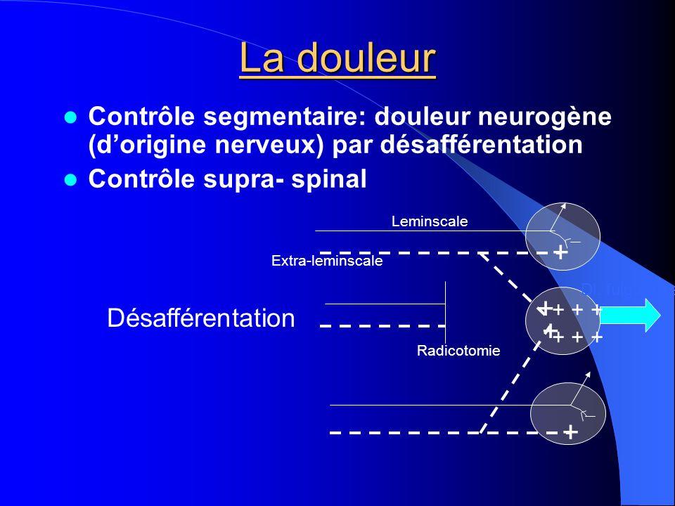 La douleur Contrôle segmentaire: douleur neurogène (d'origine nerveux) par désafférentation. Contrôle supra- spinal.