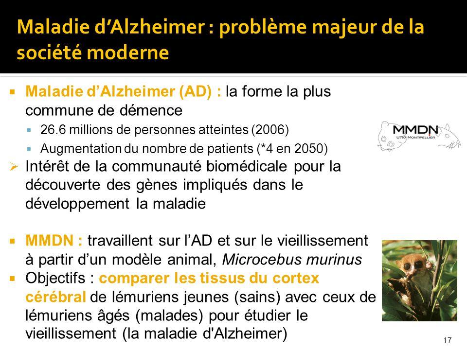 Maladie d'Alzheimer : problème majeur de la société moderne