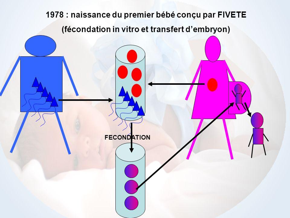 1978 : naissance du premier bébé conçu par FIVETE