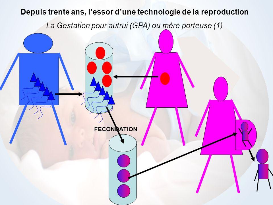 Depuis trente ans, l'essor d'une technologie de la reproduction
