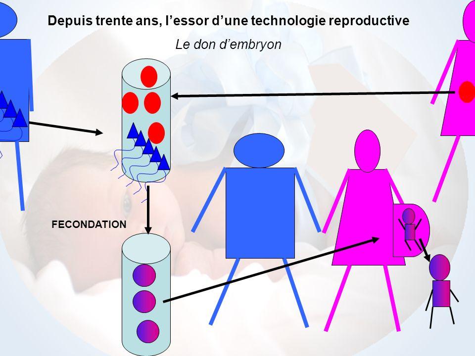 Depuis trente ans, l'essor d'une technologie reproductive