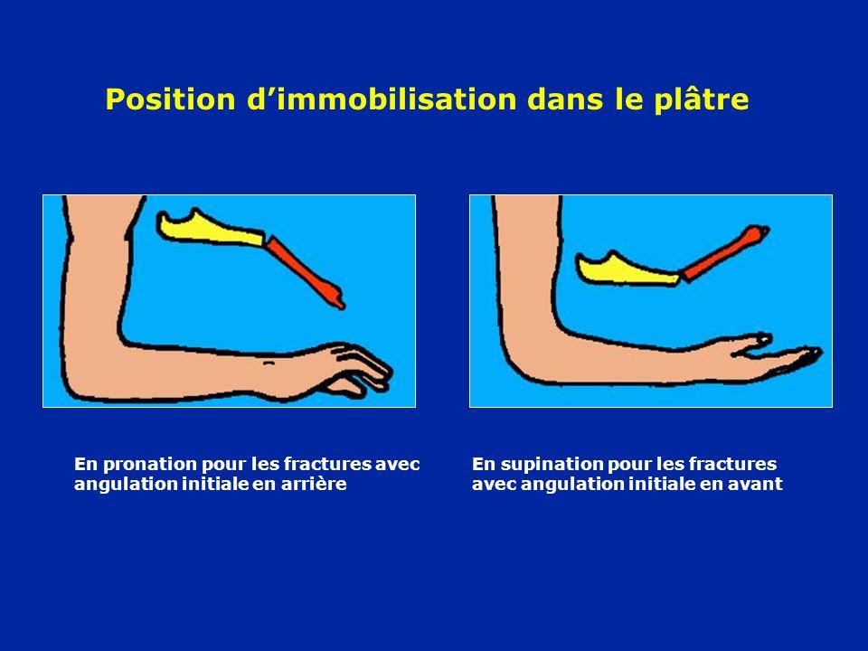 Position d'immobilisation dans le plâtre
