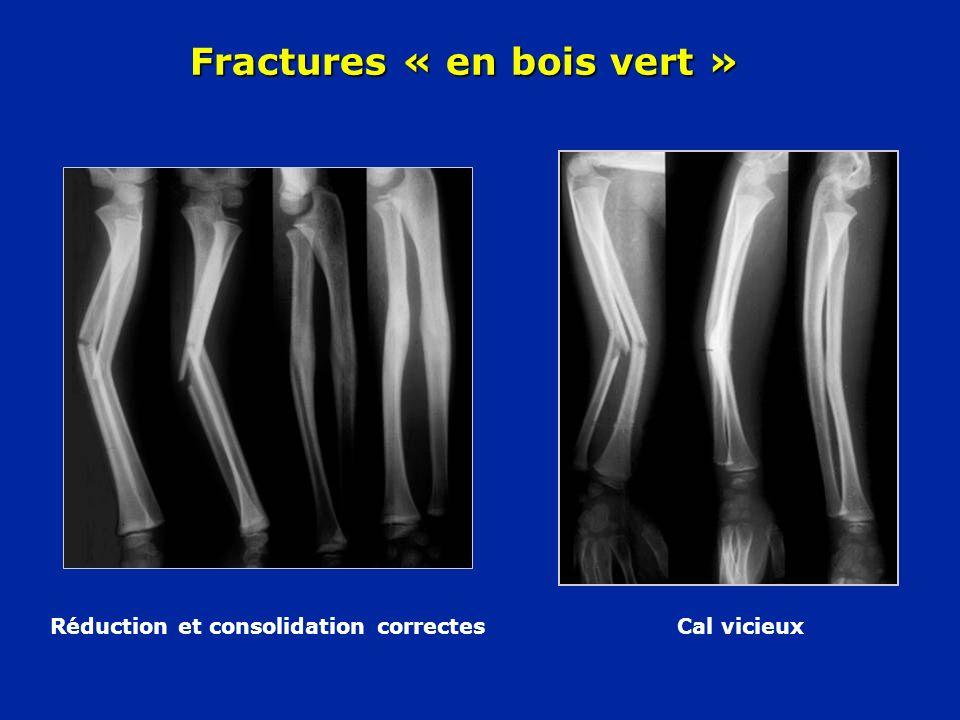 Fractures « en bois vert »