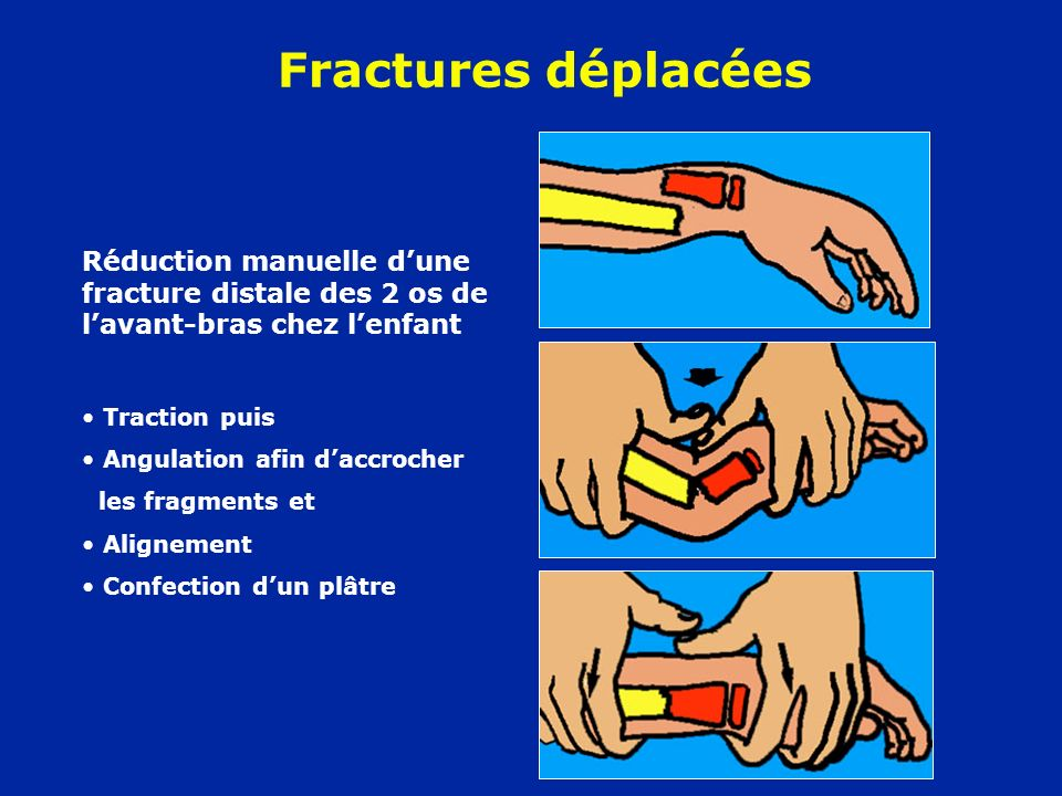Fractures déplacées Réduction manuelle d'une fracture distale des 2 os de l'avant-bras chez l'enfant.