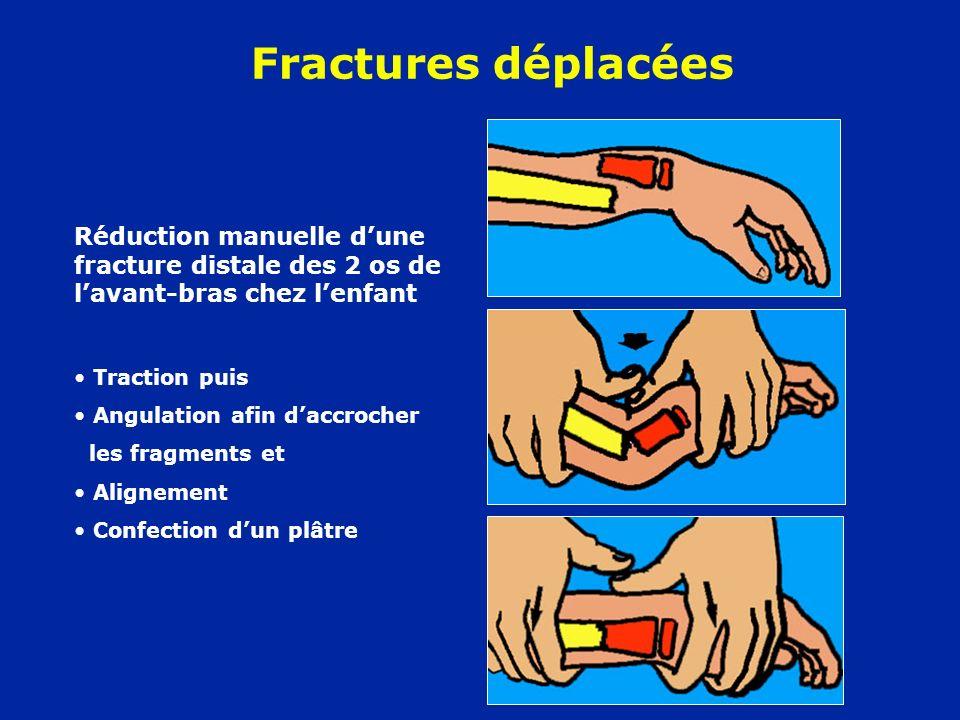 Fractures déplacéesRéduction manuelle d'une fracture distale des 2 os de l'avant-bras chez l'enfant.