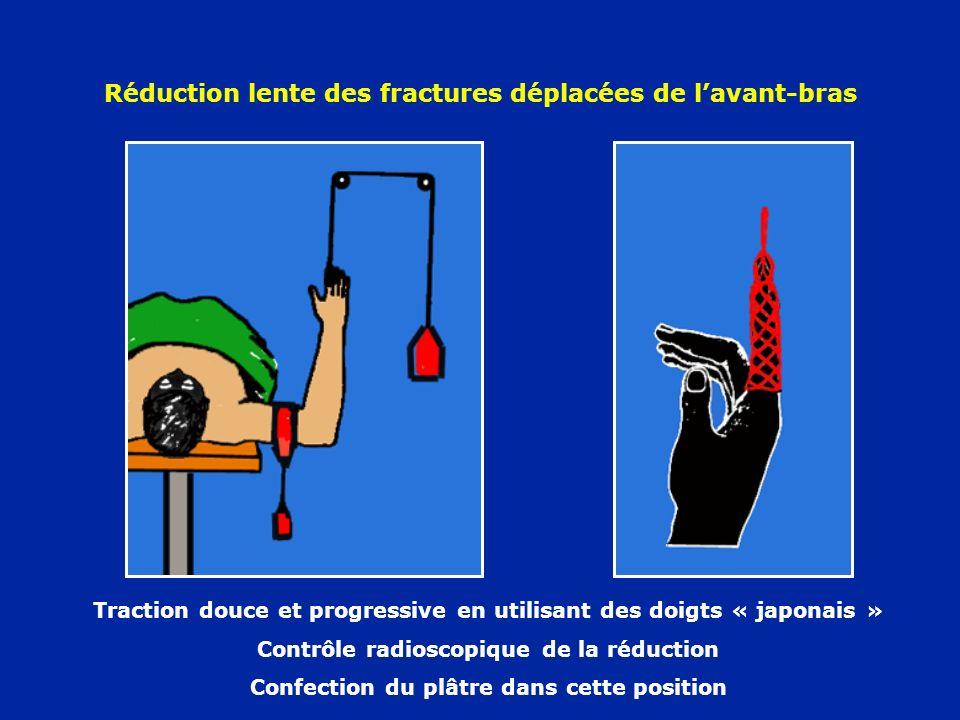 Réduction lente des fractures déplacées de l'avant-bras
