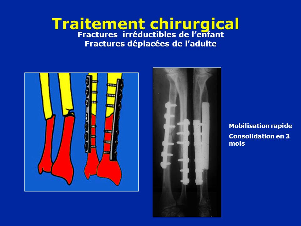 Fractures irréductibles de l'enfant Fractures déplacées de l'adulte
