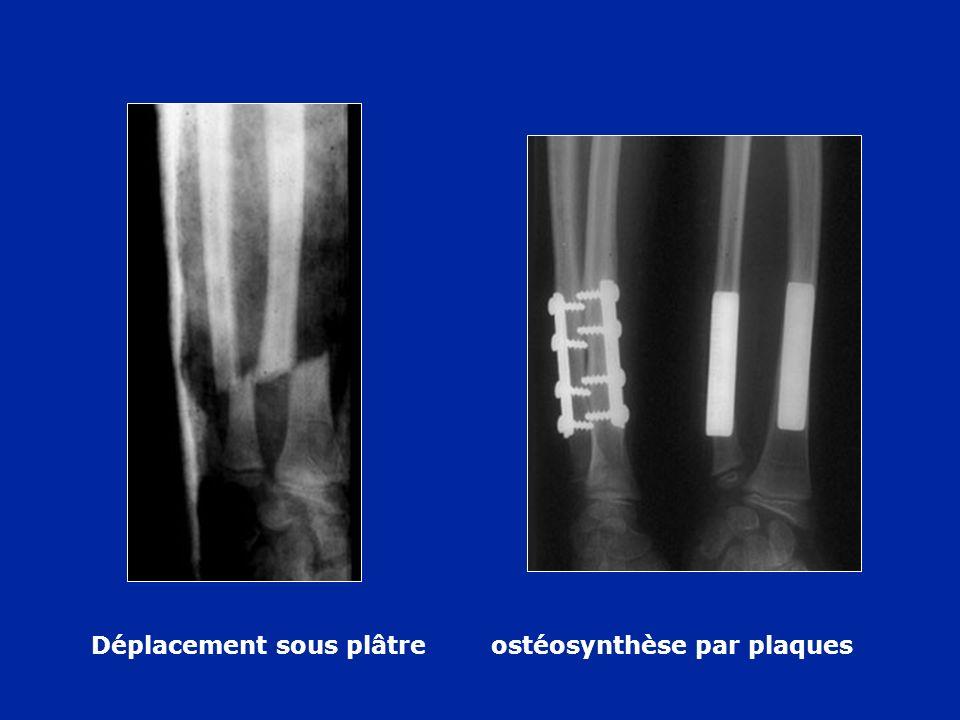 Déplacement sous plâtre ostéosynthèse par plaques
