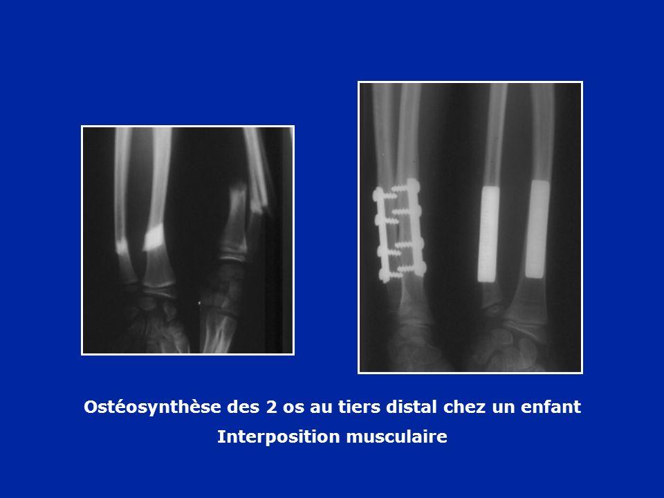 Ostéosynthèse des 2 os au tiers distal chez un enfant
