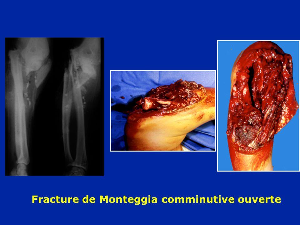 Fracture de Monteggia comminutive ouverte