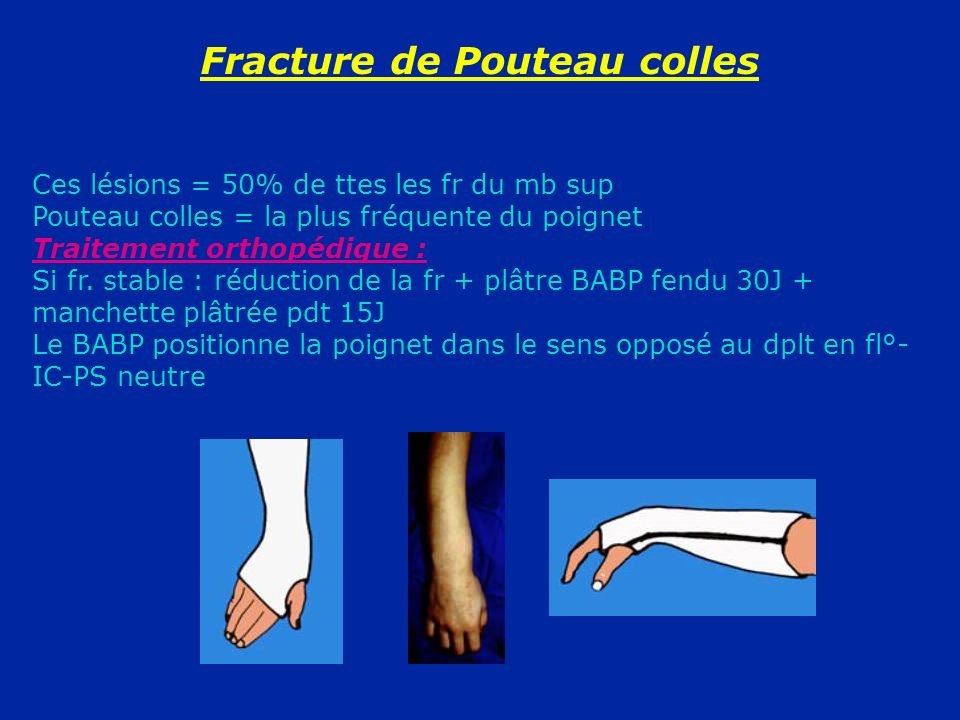 Colles fracture Causes symptoms and diagnosis