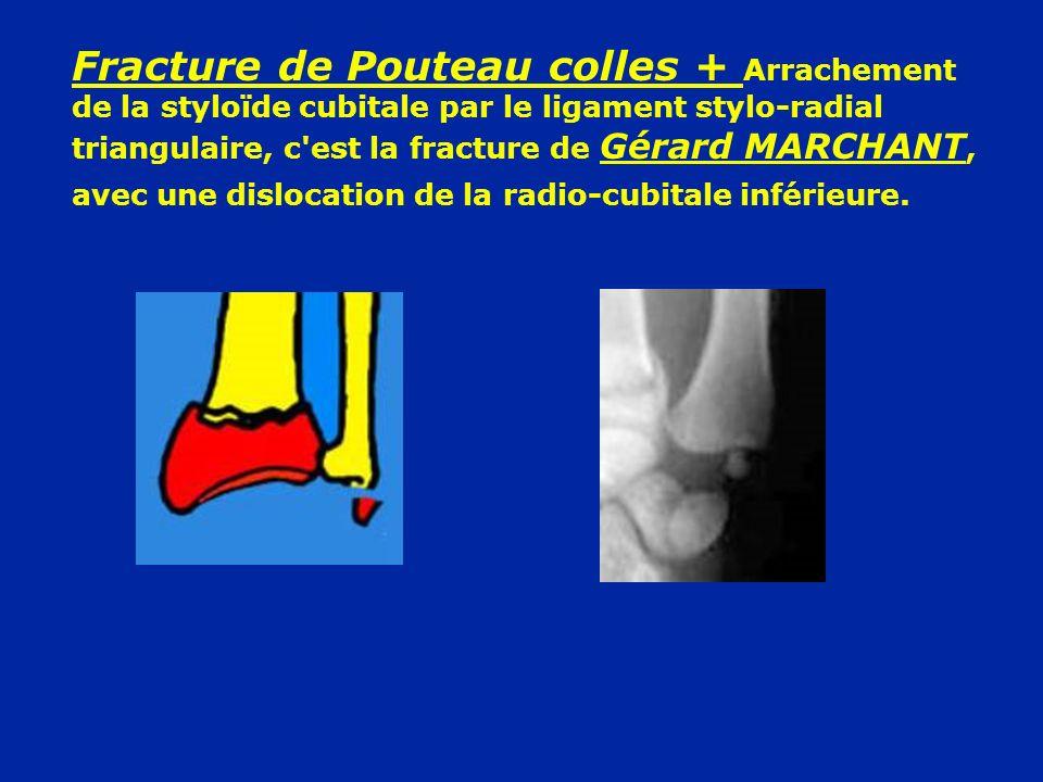 Fracture de Pouteau colles + Arrachement de la styloïde cubitale par le ligament stylo-radial triangulaire, c est la fracture de Gérard MARCHANT, avec une dislocation de la radio-cubitale inférieure.