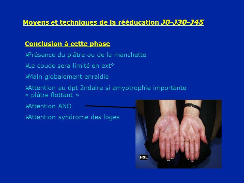 Moyens et techniques de la rééducation J0-J30-J45