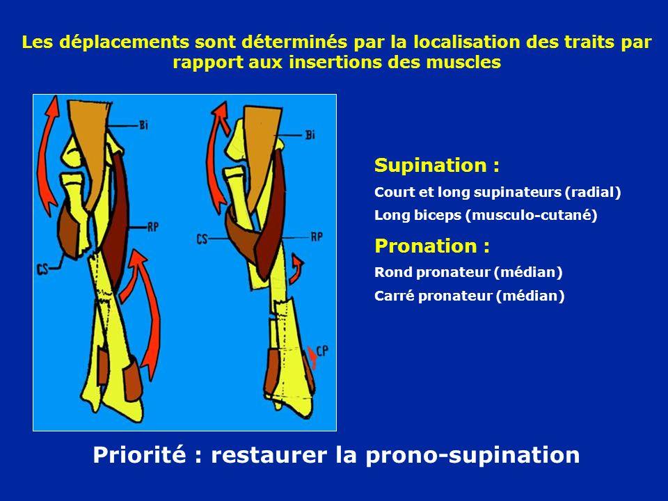 Priorité : restaurer la prono-supination