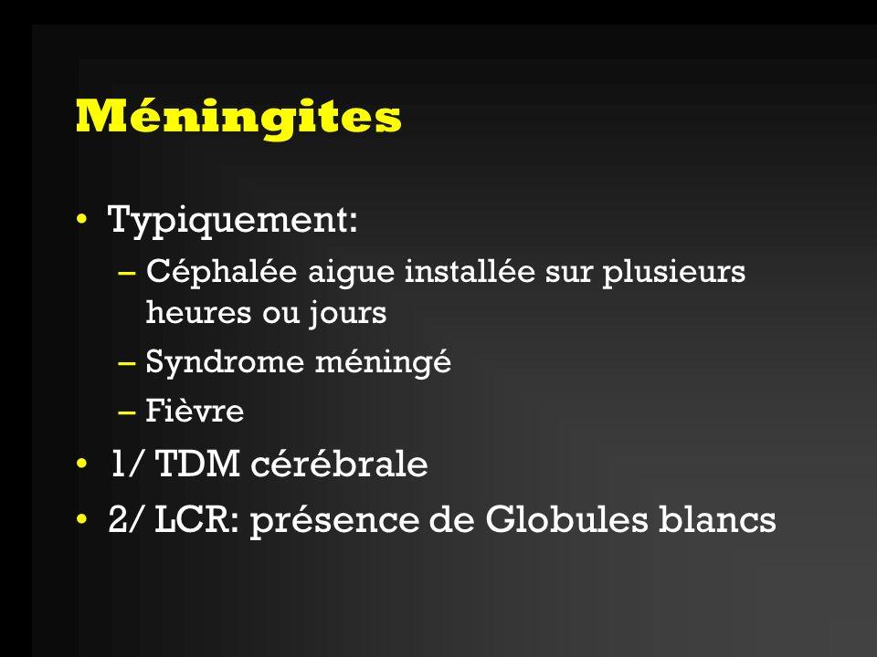 Méningites Typiquement: 1/ TDM cérébrale