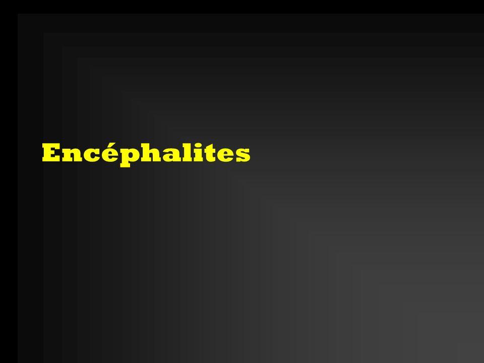 Encéphalites
