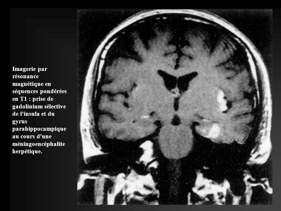 Imagerie par résonance magnétique en séquences pondérées en T1 : prise de gadolinium sélective de l insula et du gyrus parahippocampique au cours d une méningoencéphalite herpétique.