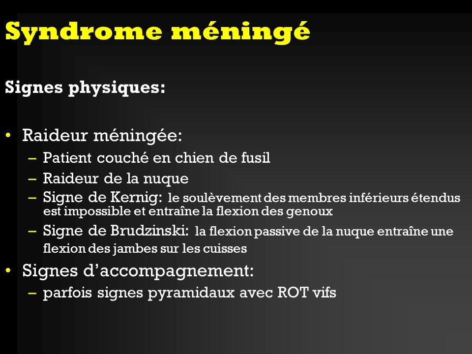 Syndrome méningé Signes physiques: Raideur méningée: