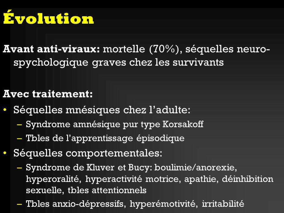 Évolution Avant anti-viraux: mortelle (70%), séquelles neuro-spychologique graves chez les survivants.