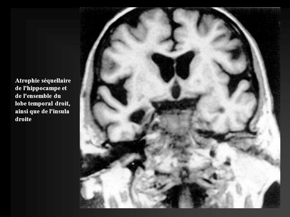 Atrophie séquellaire de l hippocampe et de l ensemble du lobe temporal droit, ainsi que de l insula droite.