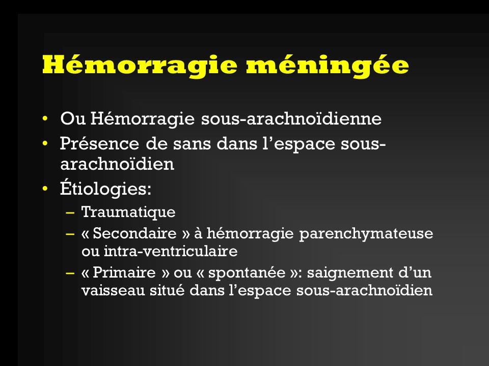 Hémorragie méningée Ou Hémorragie sous-arachnoïdienne