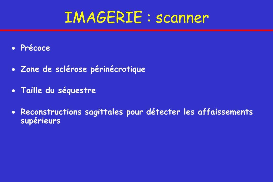 IMAGERIE : scanner Précoce Zone de sclérose périnécrotique