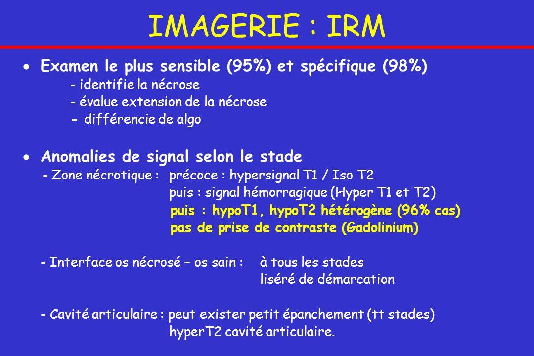 IMAGERIE : IRM Examen le plus sensible (95%) et spécifique (98%)