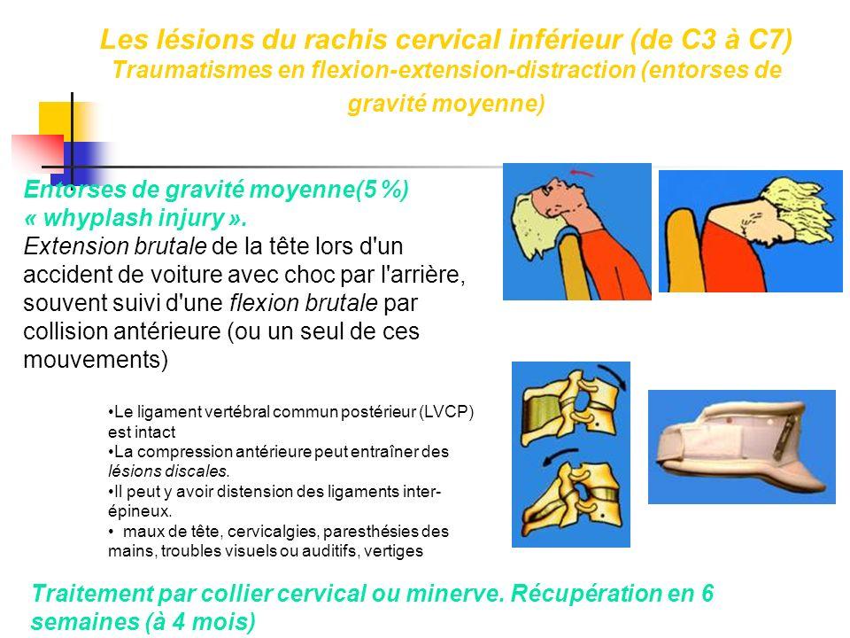 Les lésions du rachis cervical inférieur (de C3 à C7) Traumatismes en flexion-extension-distraction (entorses de gravité moyenne)