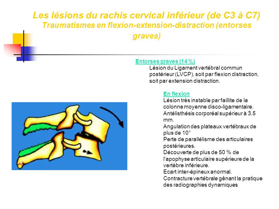 Les lésions du rachis cervical inférieur (de C3 à C7) Traumatismes en flexion-extension-distraction (entorses graves)