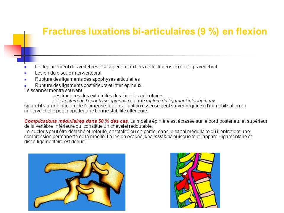 Fractures luxations bi-articulaires (9 %) en flexion