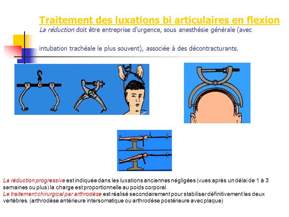 Traitement des luxations bi articulaires en flexion La réduction doit être entreprise d urgence, sous anesthésie générale (avec intubation trachéale le plus souvent), associée à des décontracturants.
