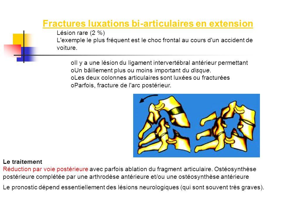 Fractures luxations bi-articulaires en extension