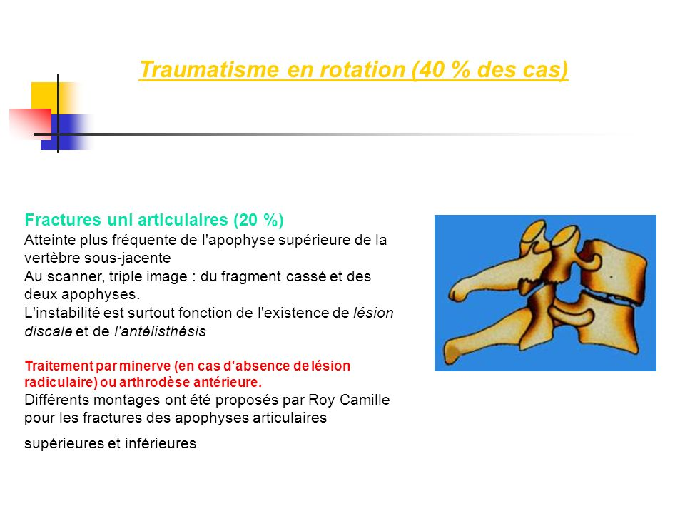 Traumatisme en rotation (40 % des cas)