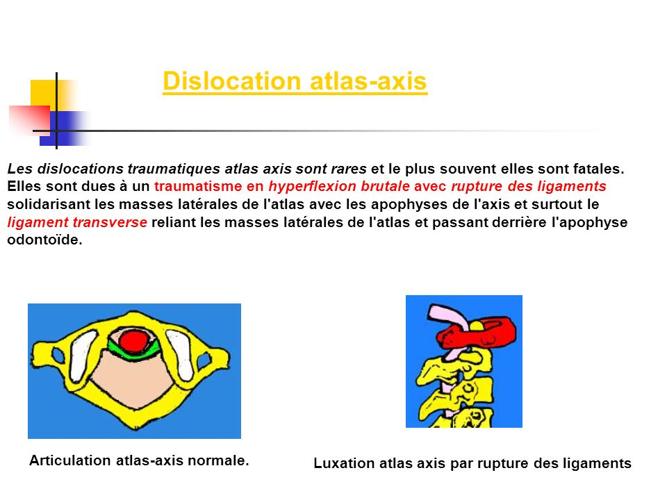 Dislocation atlas-axis