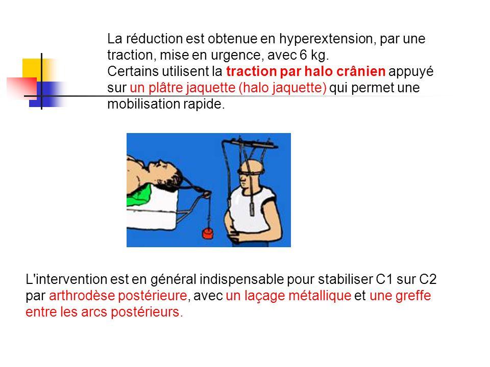 La réduction est obtenue en hyperextension, par une traction, mise en urgence, avec 6 kg.
