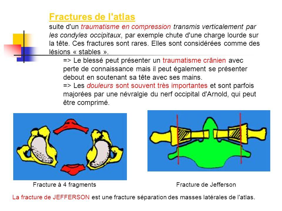 Fractures de l atlas