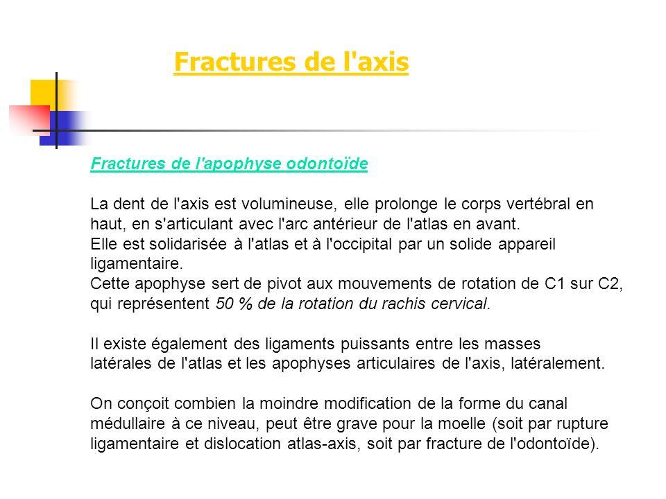 Fractures de l axis Fractures de l apophyse odontoïde