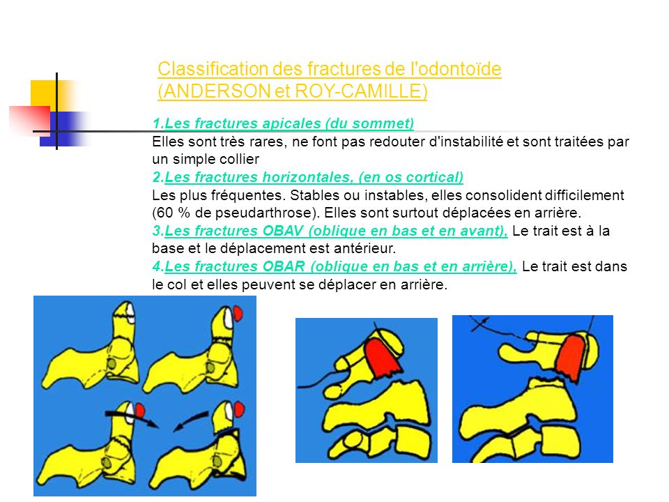 Classification des fractures de l odontoïde (ANDERSON et ROY-CAMILLE)