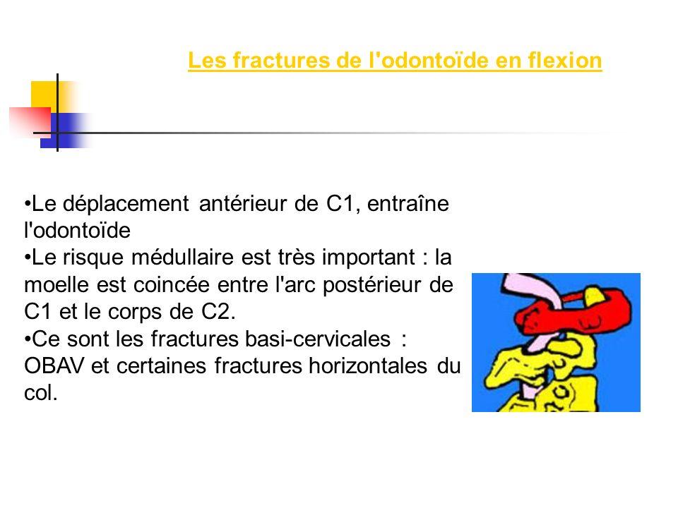 Les fractures de l odontoïde en flexion