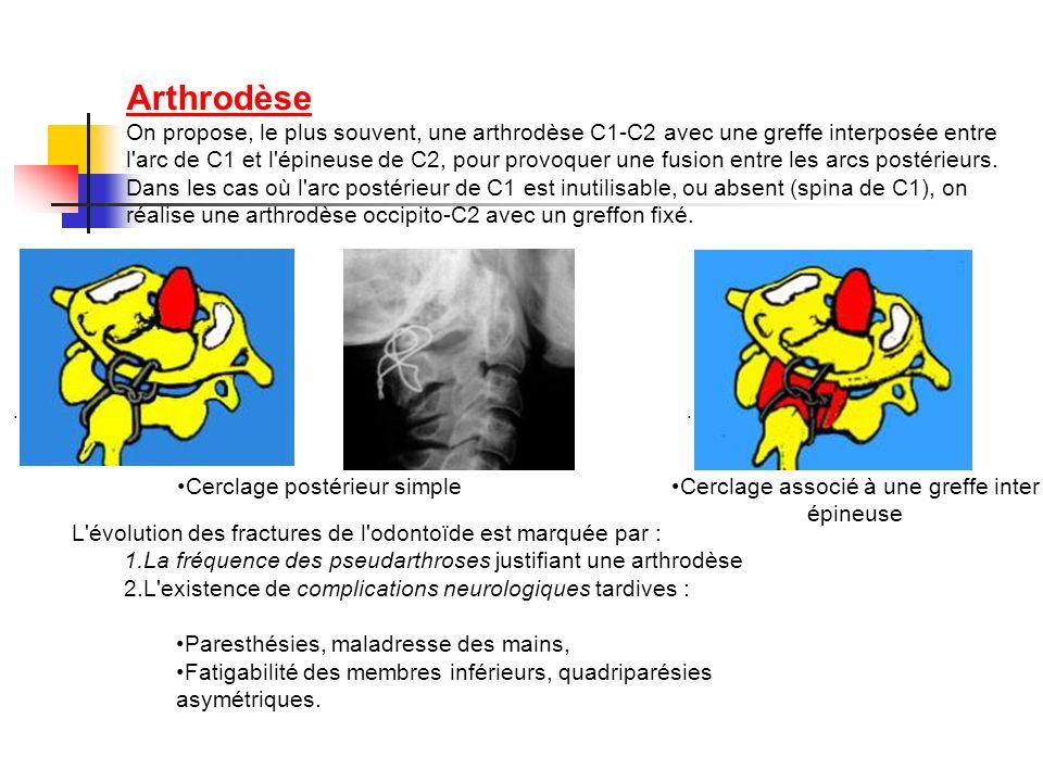 Arthrodèse On propose, le plus souvent, une arthrodèse C1-C2 avec une greffe interposée entre l arc de C1 et l épineuse de C2, pour provoquer une fusion entre les arcs postérieurs. Dans les cas où l arc postérieur de C1 est inutilisable, ou absent (spina de C1), on réalise une arthrodèse occipito-C2 avec un greffon fixé.