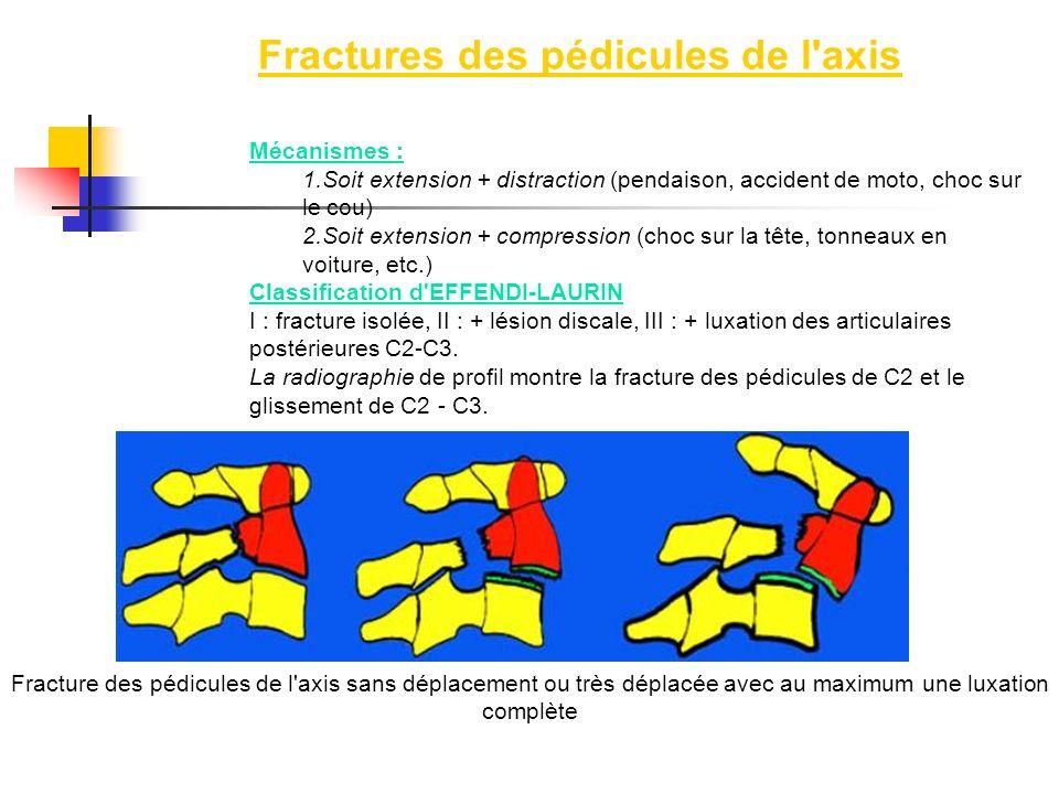 Fractures des pédicules de l axis