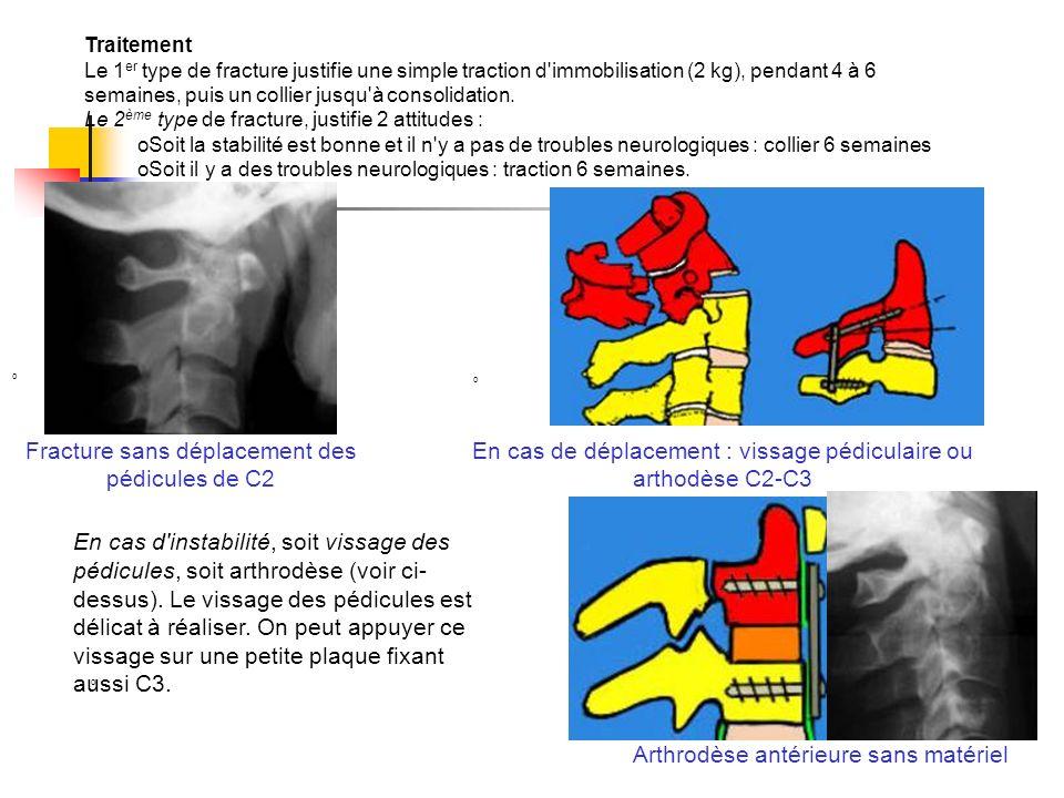 Fracture sans déplacement des pédicules de C2