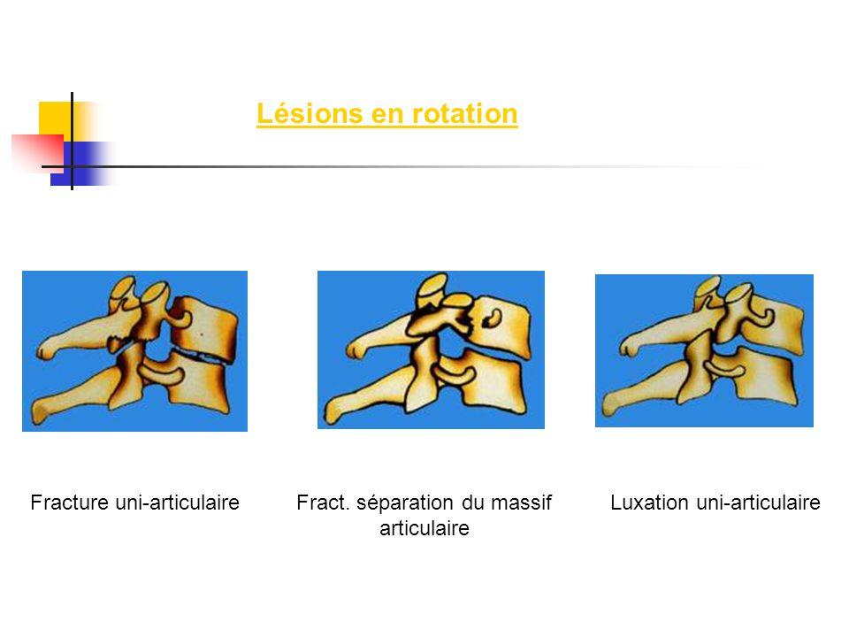 Lésions en rotation Fracture uni-articulaire