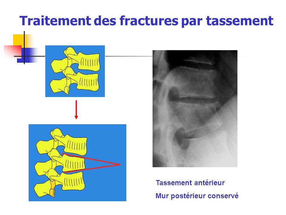 Traitement des fractures par tassement