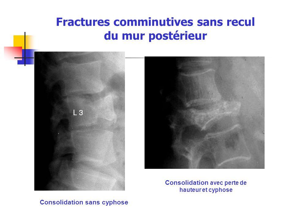 Fractures comminutives sans recul du mur postérieur