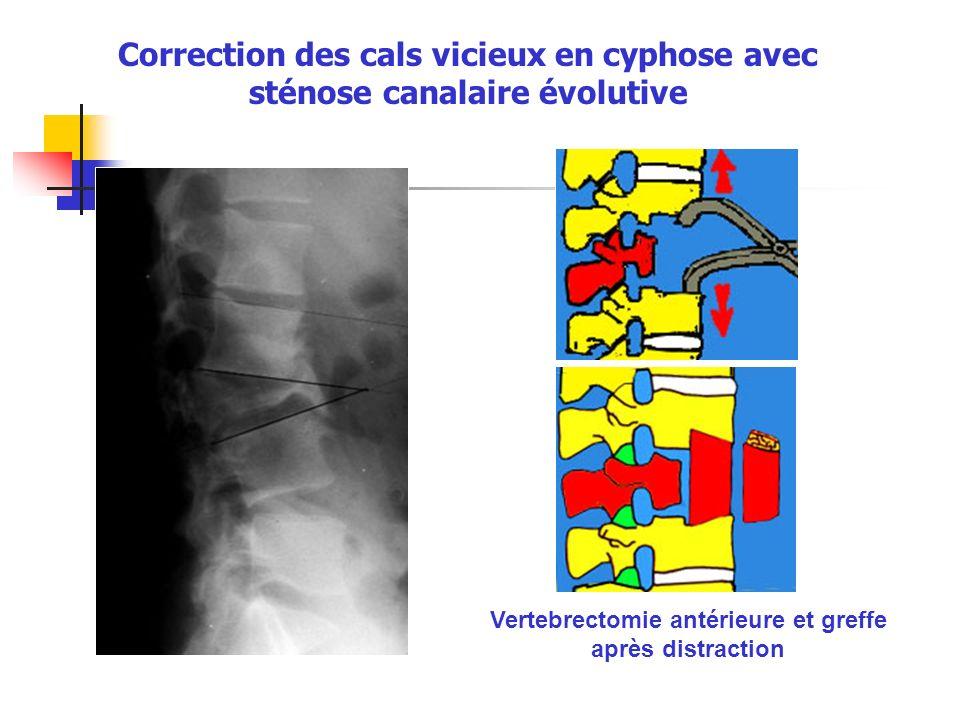 Vertebrectomie antérieure et greffe après distraction